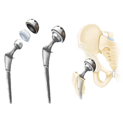 hip and knee implant lawsuit